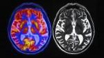 mri scan on brains
